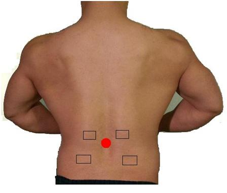 Posterior_view_of_lumbar_region_for_electrostimulation_electrode_placement